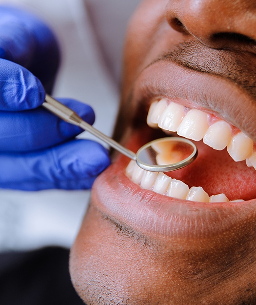 Dentist checking man's smile after tooth colored filling treatment